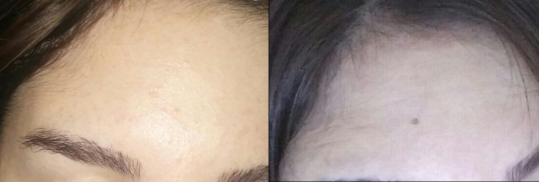 הסרת שומות לפני ואחרי